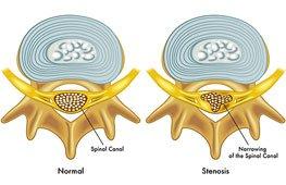 היצרות תעלת השדרה (spinal stenosis)